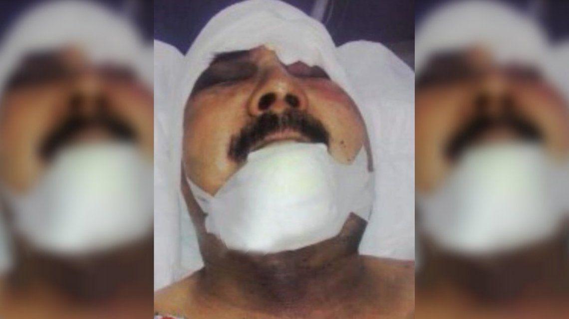 Marcos Bruno tiene 79 años y lucha por su vida después del brutal asalto.