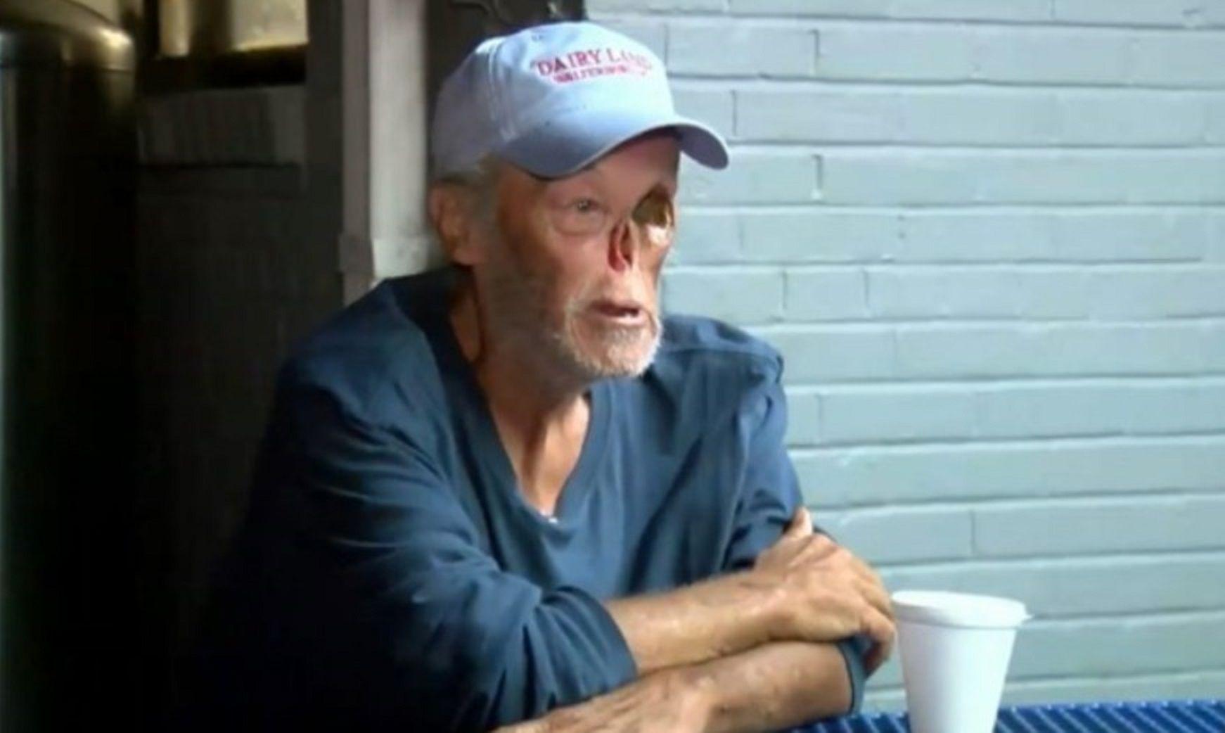 Echaron de un restaurante a un sobreviviente de cáncer porque asustaba a los clientes