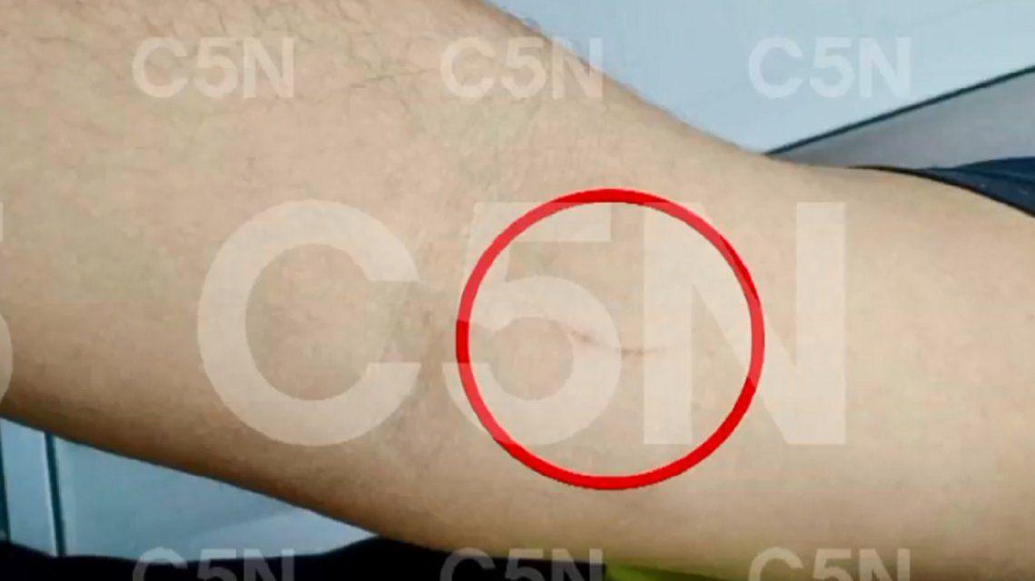 Estas son las marcas que presenta el hombre