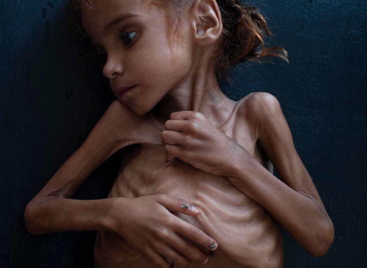 Murió Amal, la nena cuya foto mostró al mundo la peor cara de la pobreza en Yemén