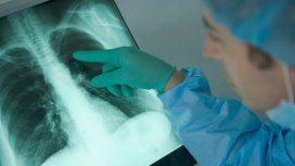 Francia: una mujer recibió los pulmones de una fumadora y murió de cáncer