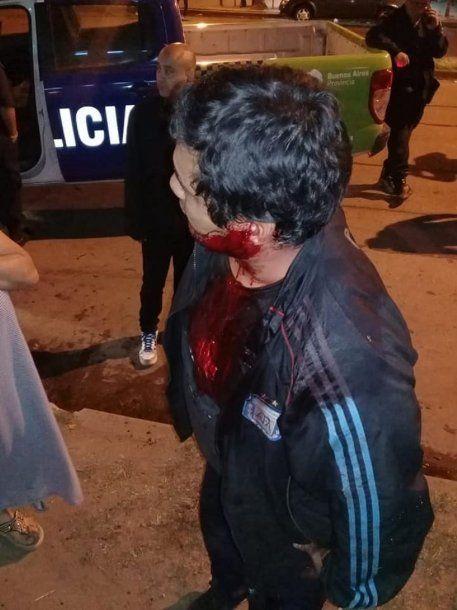 Un pasajero recibió un corte en su oreja izquierda durante el asalto.
