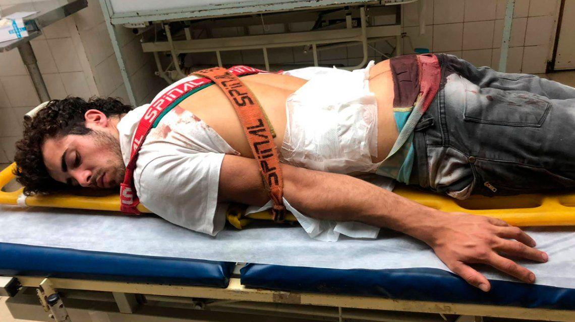 Fue a un boliche de la Costanera y patovicas lo golpearon y apuñalaron