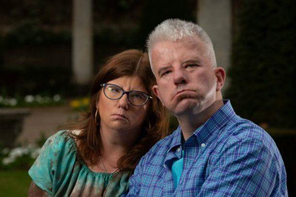 Alex encontró el amor con Erin, una mujer estadounidense que también tiene el Síndrome de Moebius