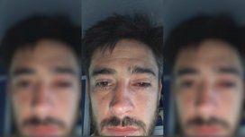 Pablo Pérez, afectado por los gases arrojados en los incidentes