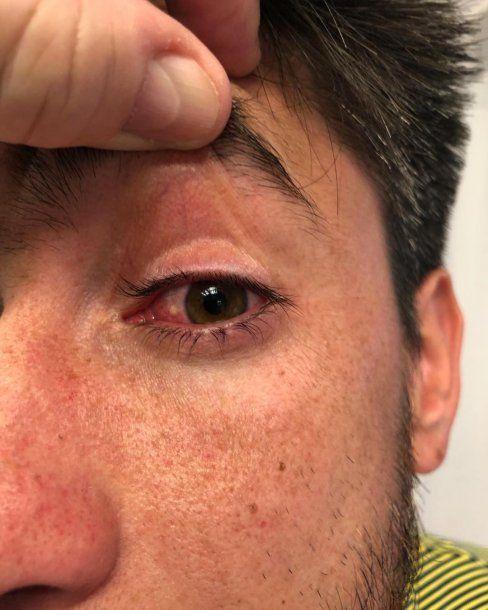 Así tiene el ojo Pablo Pérez <br>