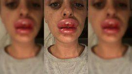Fue a una fiesta cosmética y terminó con el labio deforme