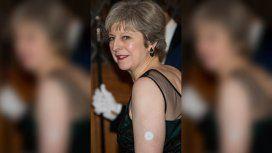 ¿Para qué sirve el botón blanco que Theresa May lleva en la piel?