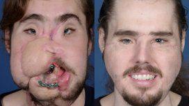 Así se ve hoy el hombre con el trasplante de cara más avanzado del mundo