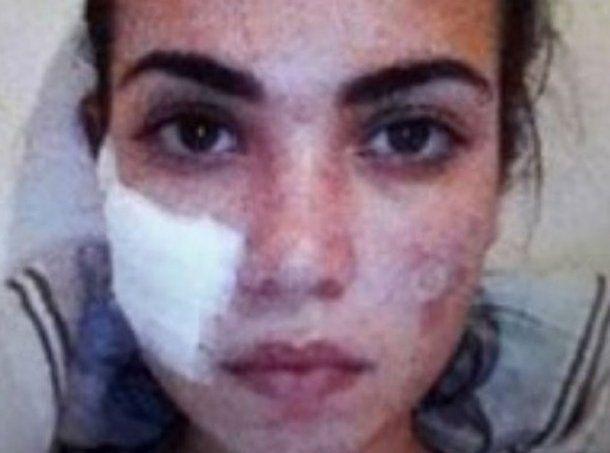 <div>Iba a competir en Miss Universo y le quemaron la cara</div>