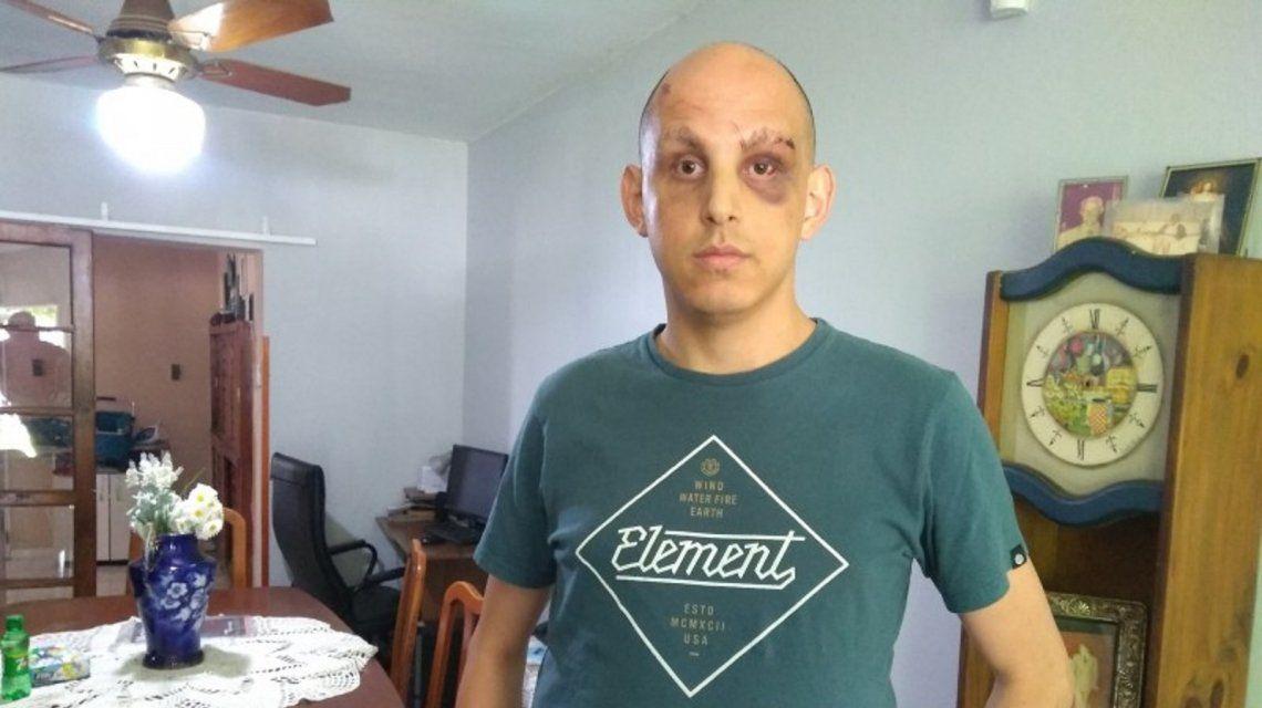 Federico Pasquali fue brutalmente golpeado pro patovicas.
