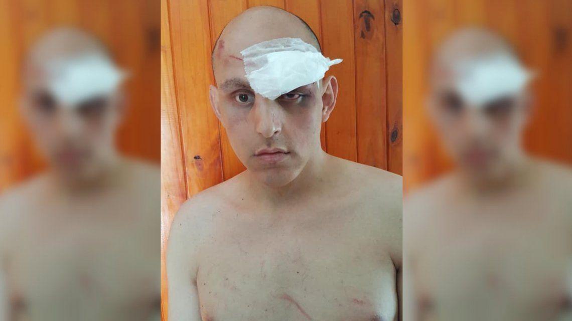 Brutal ataque de patovicas: molieron a golpes a un joven en un boliche por ser gay