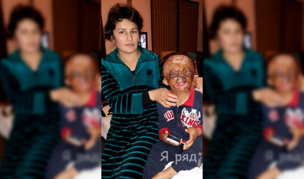 Un niño quemado le escribió una carta a Papá Noel para pedirle una cara nueva