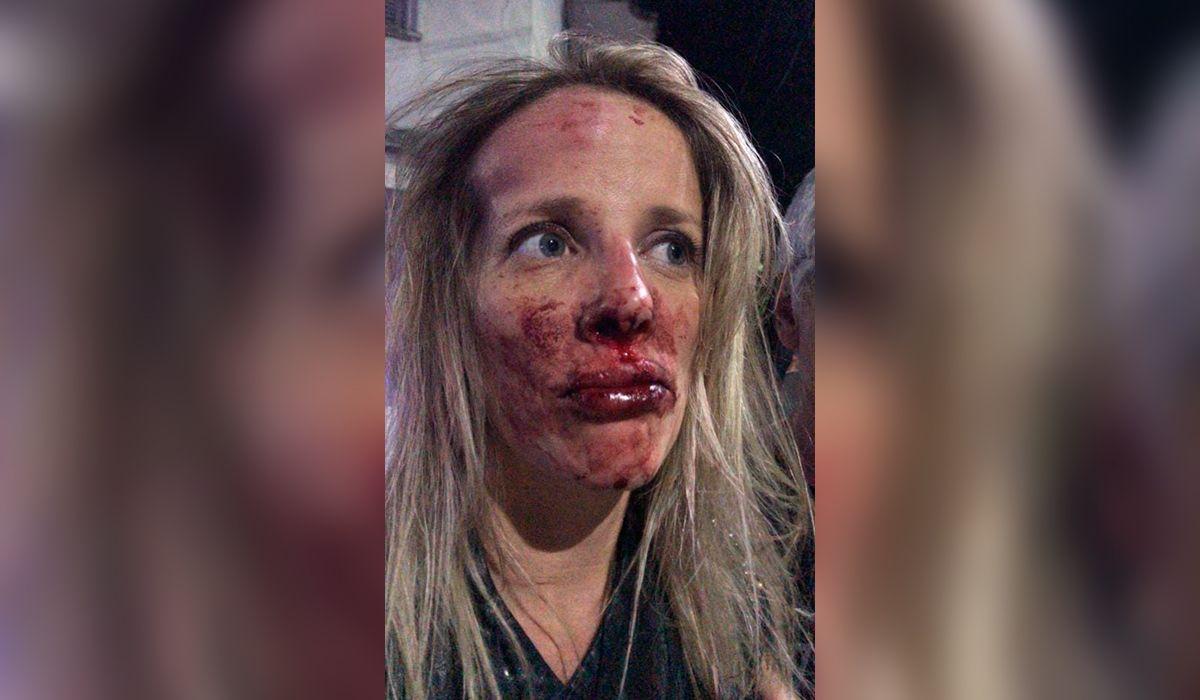 Así quedó la mujer tras el ataque