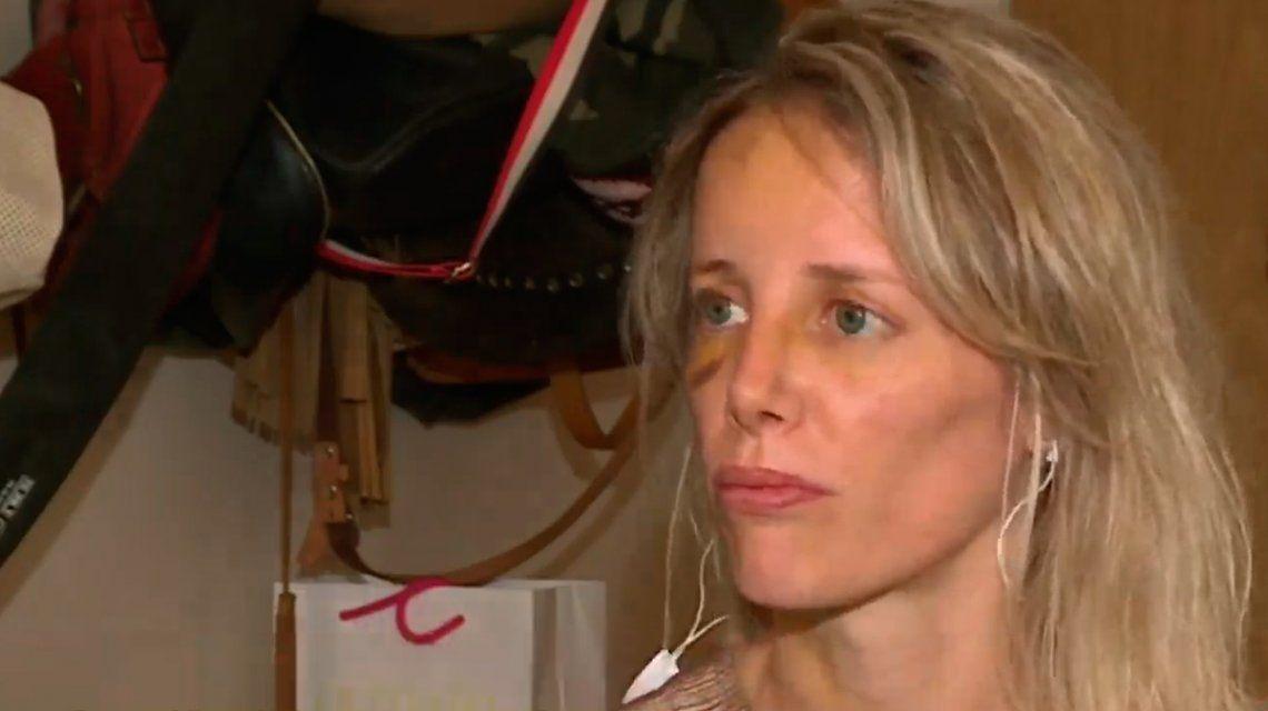 La mujer fue brutalmente golpeada cuando salió de una fiesta en Capital Federal