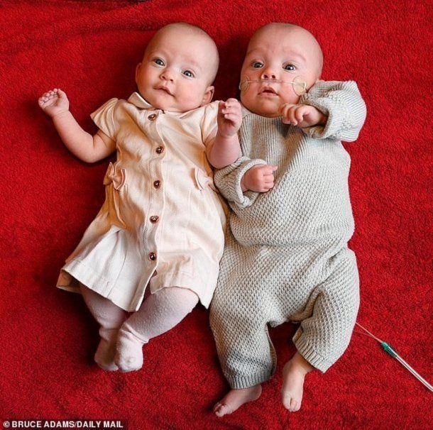 Tuvo gemelos con 12 días de diferencia - Crédito: Daily Mail