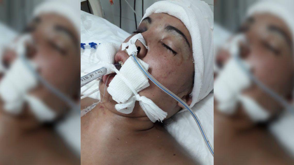 Su pareja la golpeó hasta dejarla en terapia intensiva: Siempre fueron golpes y golpes