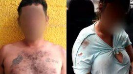 Detuvieron a una pareja que golpeó y quemó a sus tres hijos en Florencio Varela