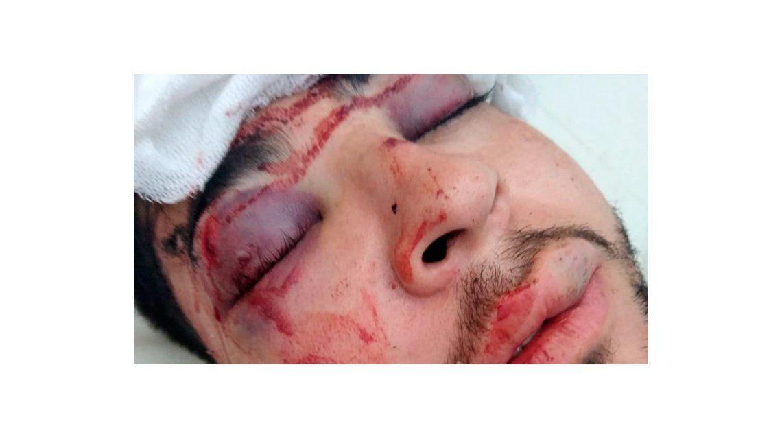 Un joven fue brutalmente golpeado a la salida del boliche Jesse James