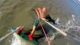 Brutal ataque de un pitbull a un kitesurfista: casi le destroza un brazo