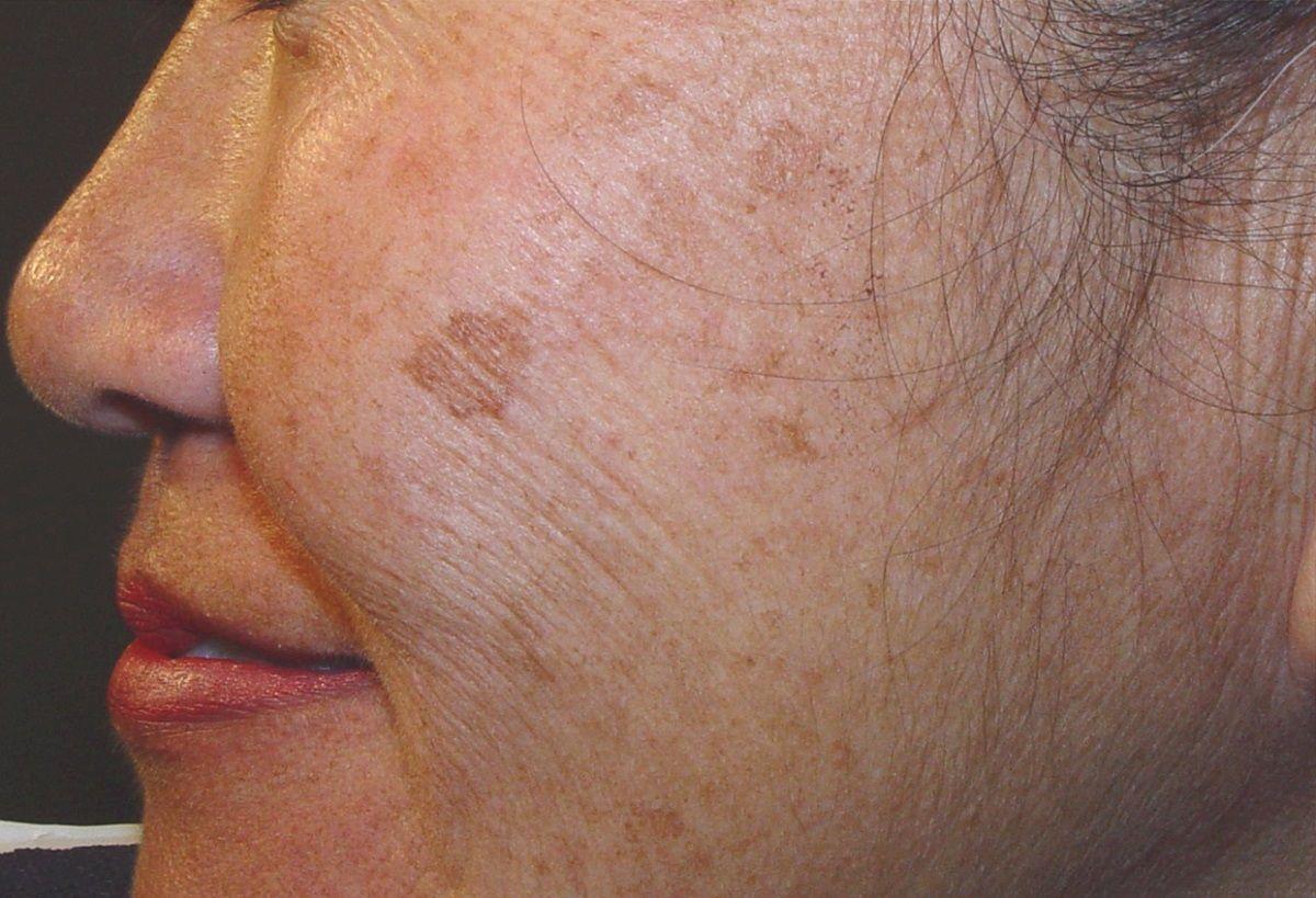 Los 5 hábitos que provocan manchas marrones en la piel