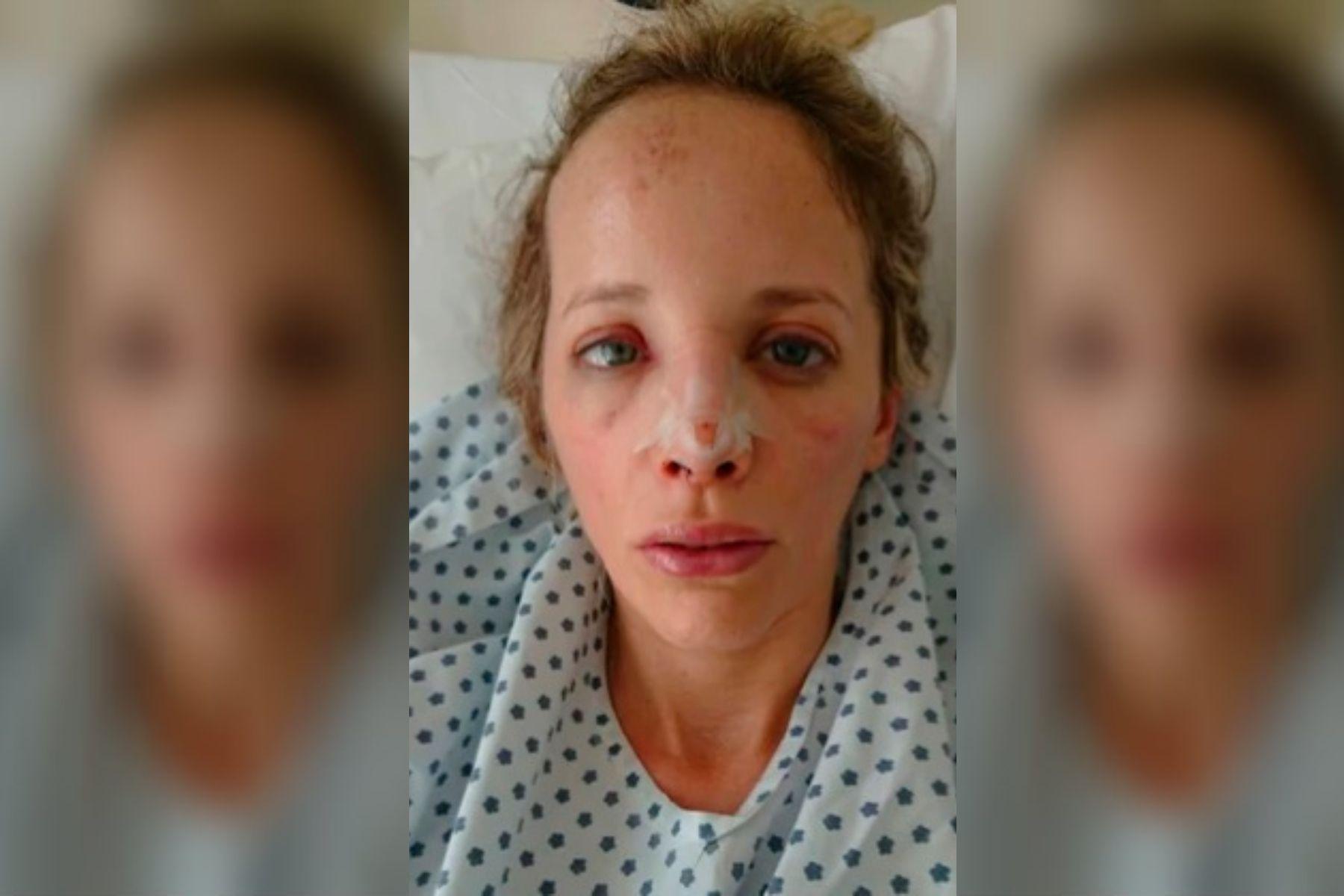 La desfiguraron hace cuatro meses mientras caminaba por Caballito y aún no sabe quién fue el atacante