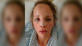 La desfiguraron mientras caminaba y 4 meses después aún no sabe quién lo hizo