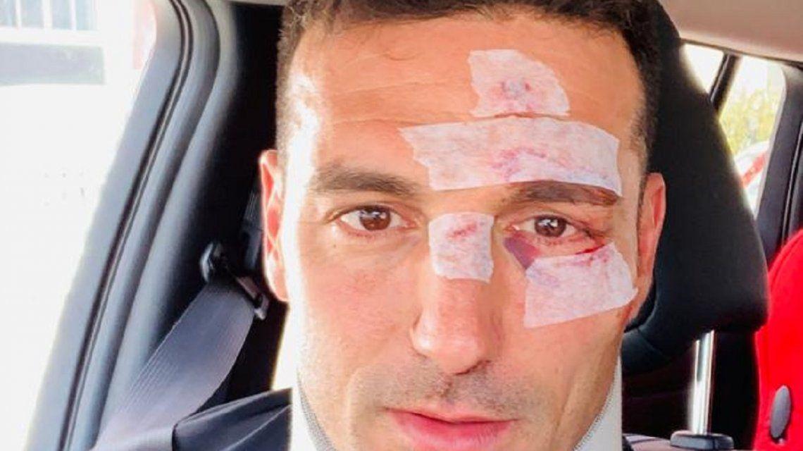 Así le quedó la cara a Scaloni tras ser atropellado mientras andaba en bicicleta