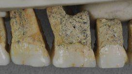 Misterio en torno al hallazgo de una nueva especie humana: Homo Luzonensis