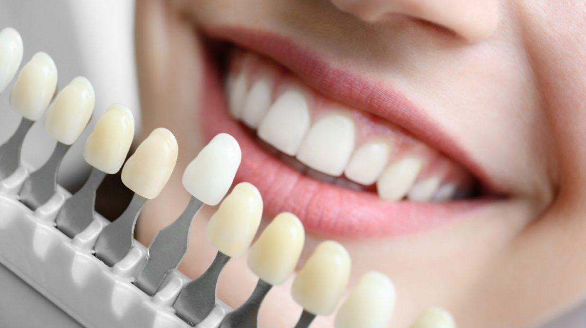 La ANMAT prohibió la venta y el uso de un implante dental y otros productos médicos