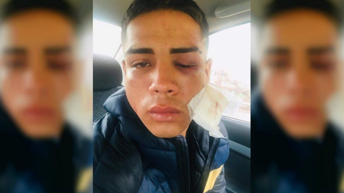 Brutal golpiza a un joven en Pinamar: un grupo de hombres lo atacó cuando volvía del boliche