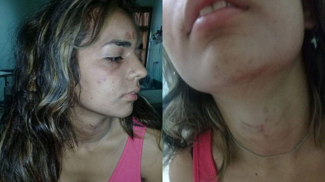 Candela Castro fue brutalmente golpeada por su ex pareja.