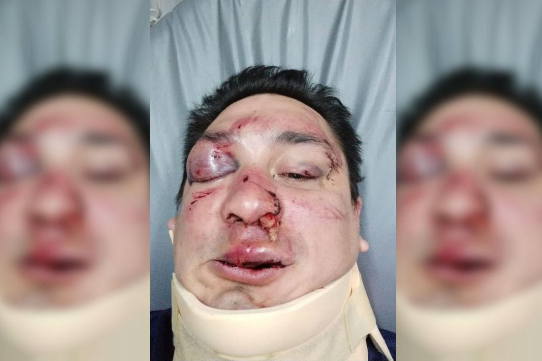 Sebastián Acosta fue brutalmente agredido por barras bravas de Rcaing.