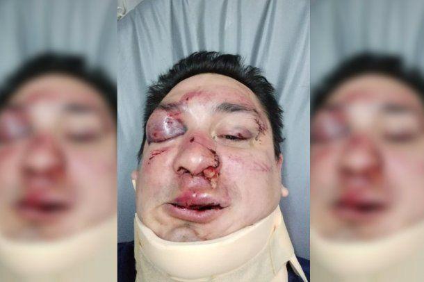 Sebastián Acosta fue brutalmente agredido por barras bravas de Rcaing.<p></p><p></p><p></p>