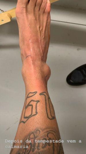 En medio del escándalo, Neymar publicó una impresionante foto de su tobillo