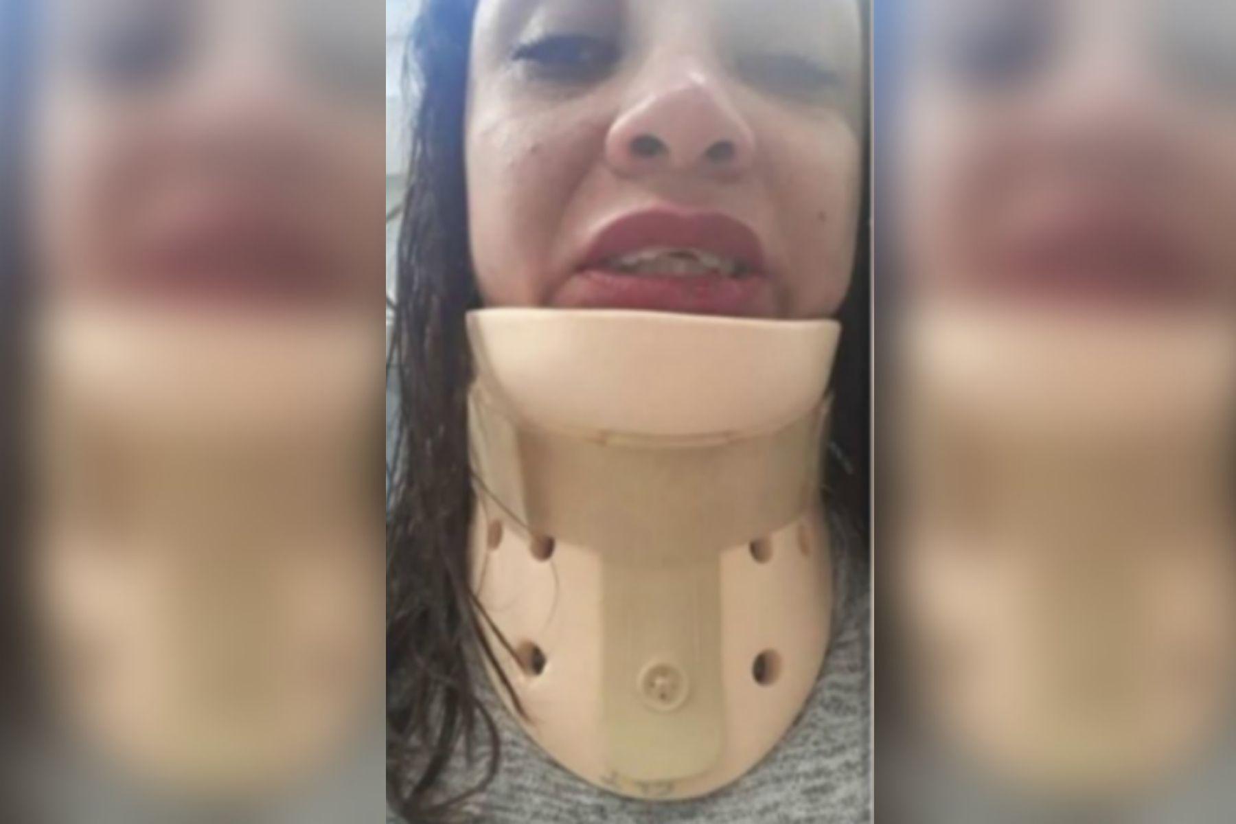 Córdoba: motochorros desfiguraron a una mujer que iba a su despedida de soltera