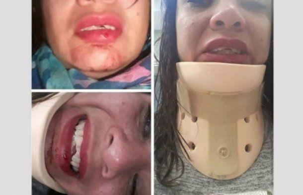 Fátima fue atacada por motochorros cuando iba a su despedida de soltera. Foto: cadena3.