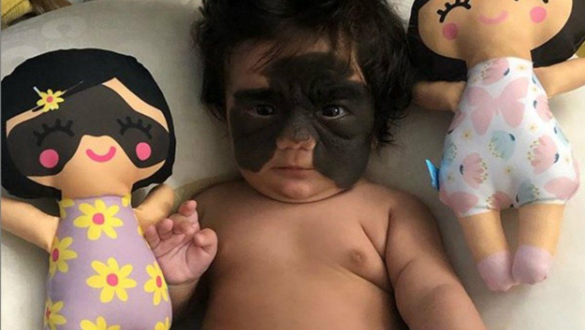 Una bebé se convirtió en estrella de Instagram con su marca de nacimiento