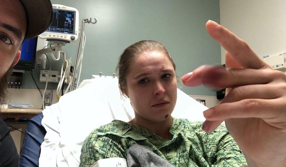 Ronda Rousey sufrió la amputación parcial de un dedo grabando la serie 9-1-1