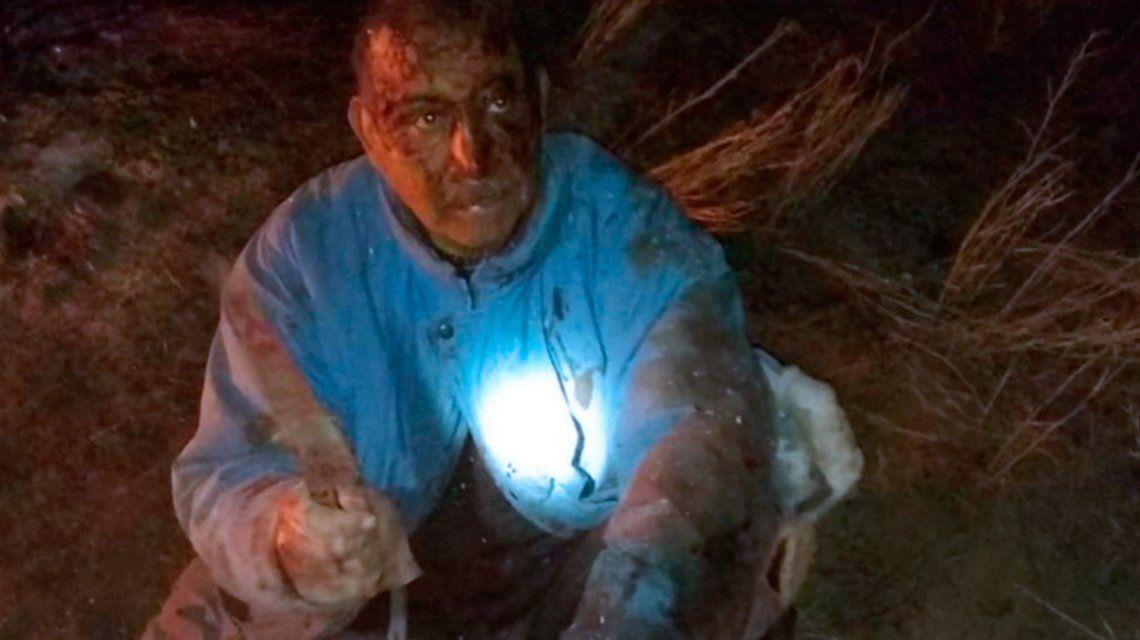 Luchó y mató a un puma para defender a su perro