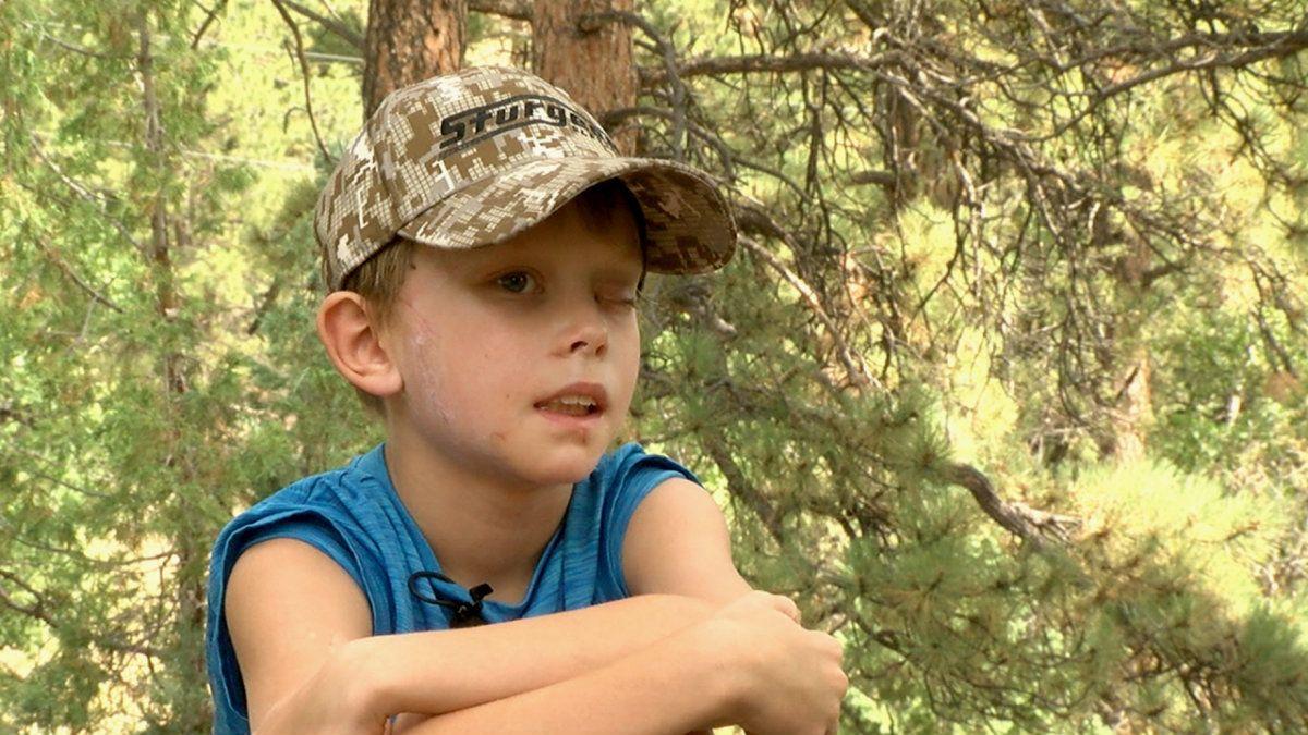 Un chico de 8 años sobrevivió al ataque de un puma que le mordió la cabeza