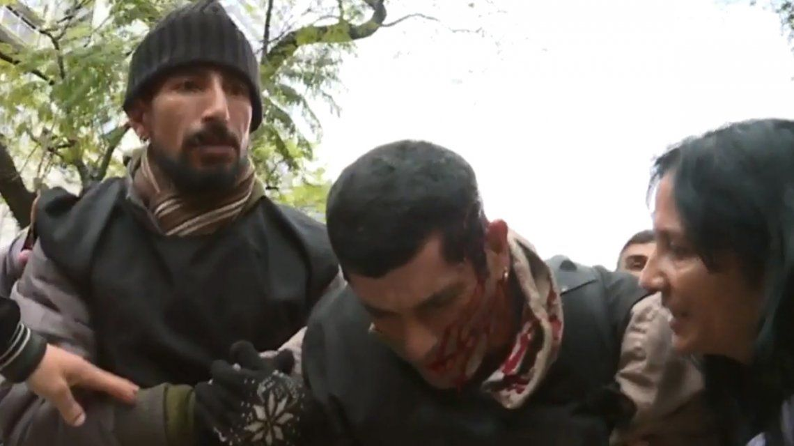Incidentes entre los manifestantes y la policía en el acampe frente a Desarrollo Social: hay heridos y un detenido