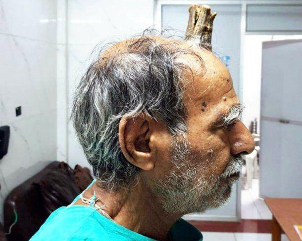 Shyam Lal Yadav fue operado de un crecimiento en la cabeza
