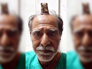 Shyam Lal Yadav tenía un cuerno de 10 centímetros en su cabeza