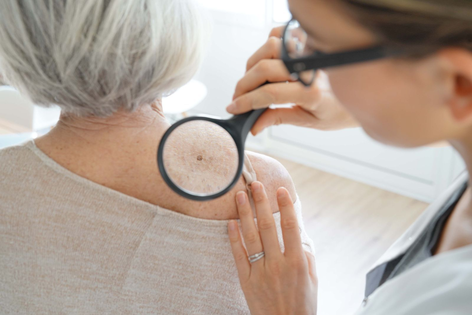 Crecieron 20% las consultas por cáncer de piel: cómo cuidarse del sol