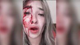 Le dijo a su novio que quería mudarse y recibió una golpiza brutal