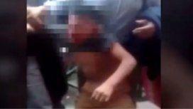 Indignante: un nene gastó 20 pesos en golosinas y su mamá le fracturó el cráneo con un machete