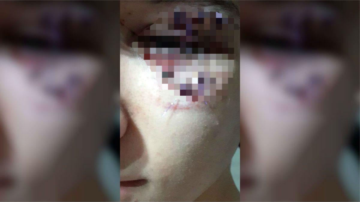 Un rugbier molió a golpes a otro chico porque lo empujó sin querer en un boliche