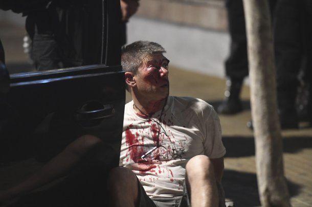 El sospechoso tenía importantes heridas en el rostro