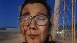 Fue víctima de violencia de género durante nueve años hasta que huyó al Chaco